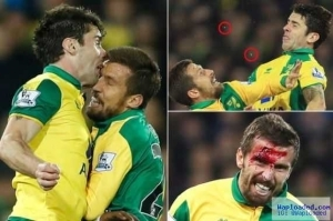 Footballer loses teeth after bloody clash with teammate in Chelsea match (Photos)